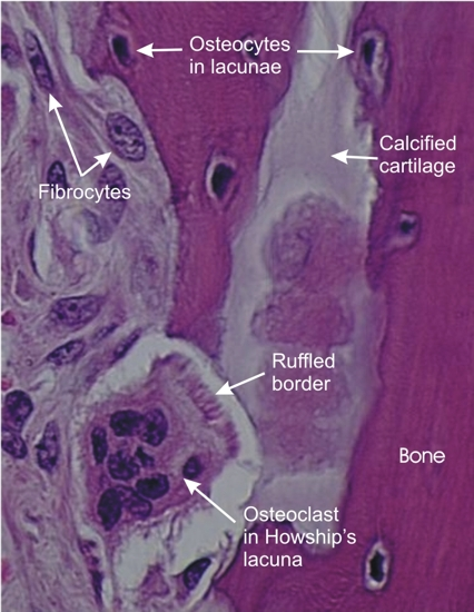 Cartilage and Bone page 30 Ruffled Border In Osteoclasts